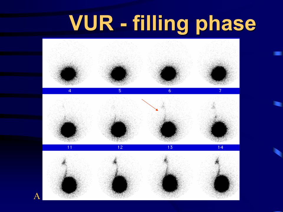 VUR - filling phase A