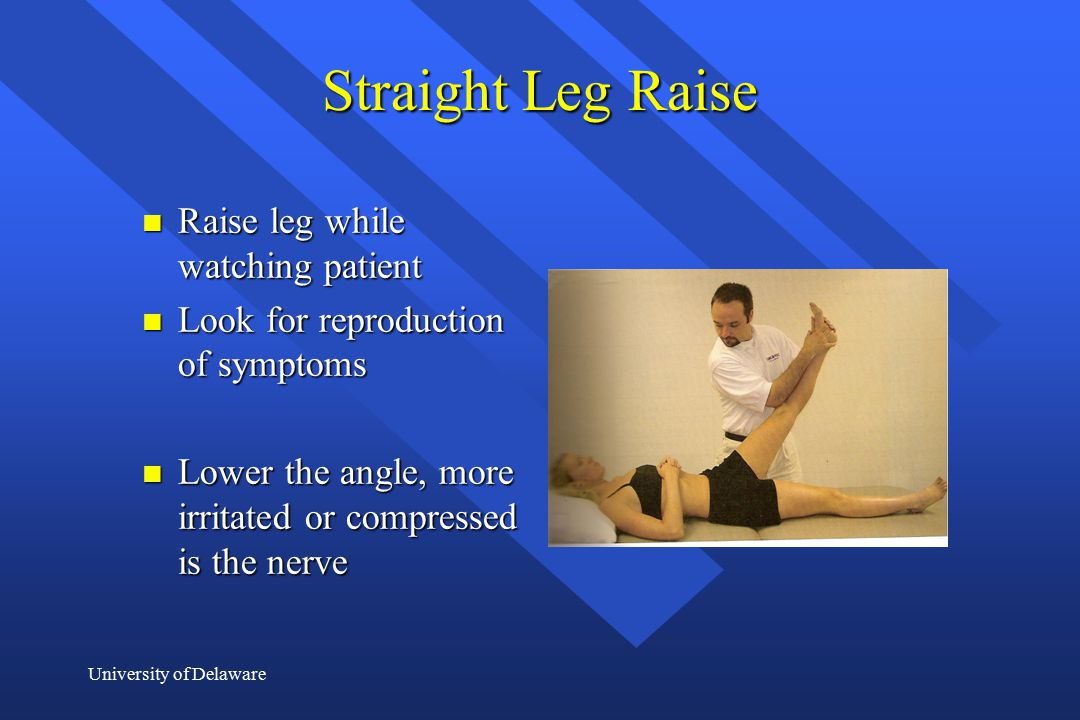 Straight Leg Raise Raise leg while watching patient