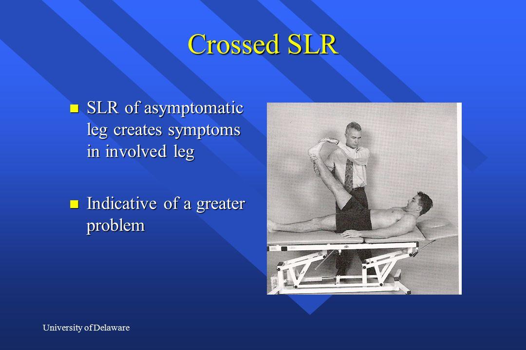 Crossed SLR SLR of asymptomatic leg creates symptoms in involved leg