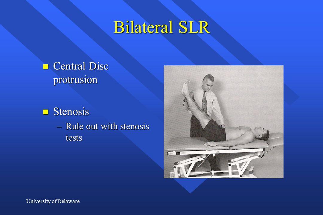 Bilateral SLR Central Disc protrusion Stenosis