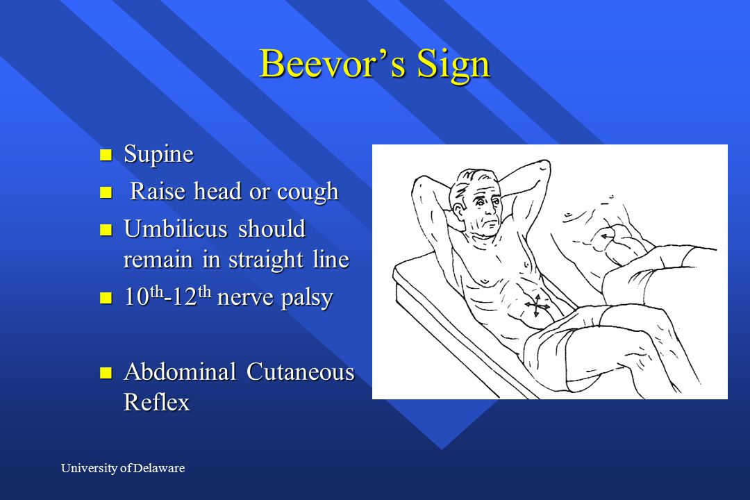 Beevor's Sign Supine Raise head or cough