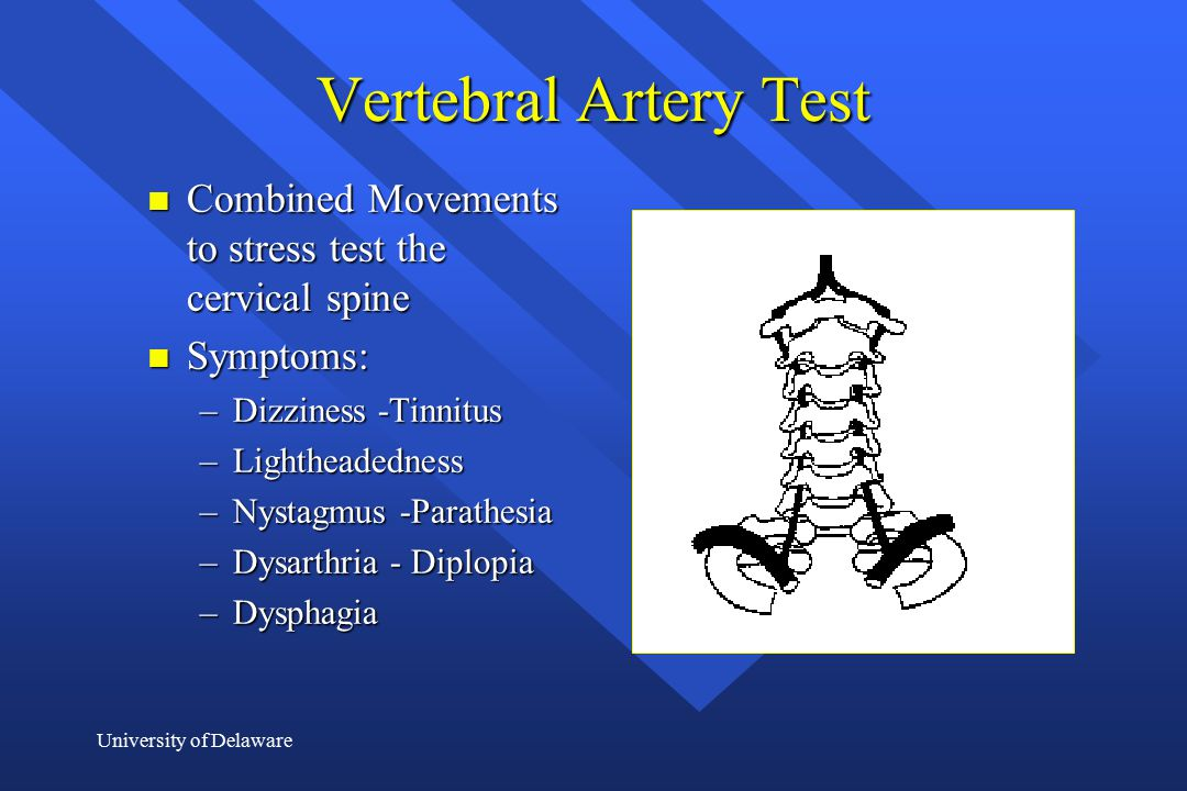 Vertebral Artery Test Combined Movements to stress test the cervical spine. Symptoms: Dizziness -Tinnitus.