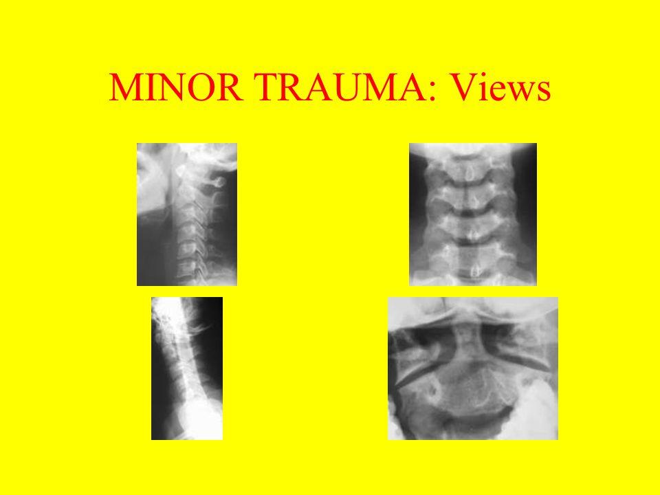 MINOR TRAUMA: Views