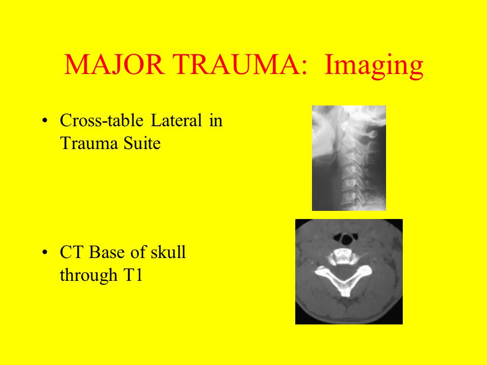 MAJOR TRAUMA: Imaging Cross-table Lateral in Trauma Suite