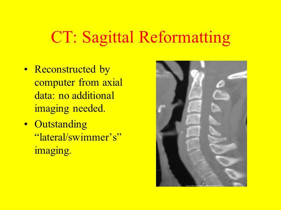 CT: Sagittal Reformatting
