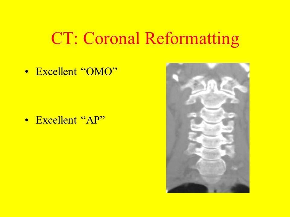 CT: Coronal Reformatting