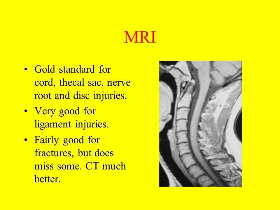 MRI Gold standard for cord, thecal sac, nerve root and disc injuries.