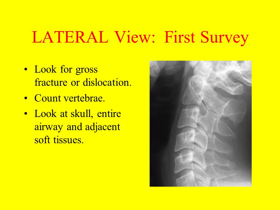 LATERAL View: First Survey