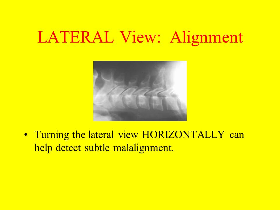 LATERAL View: Alignment