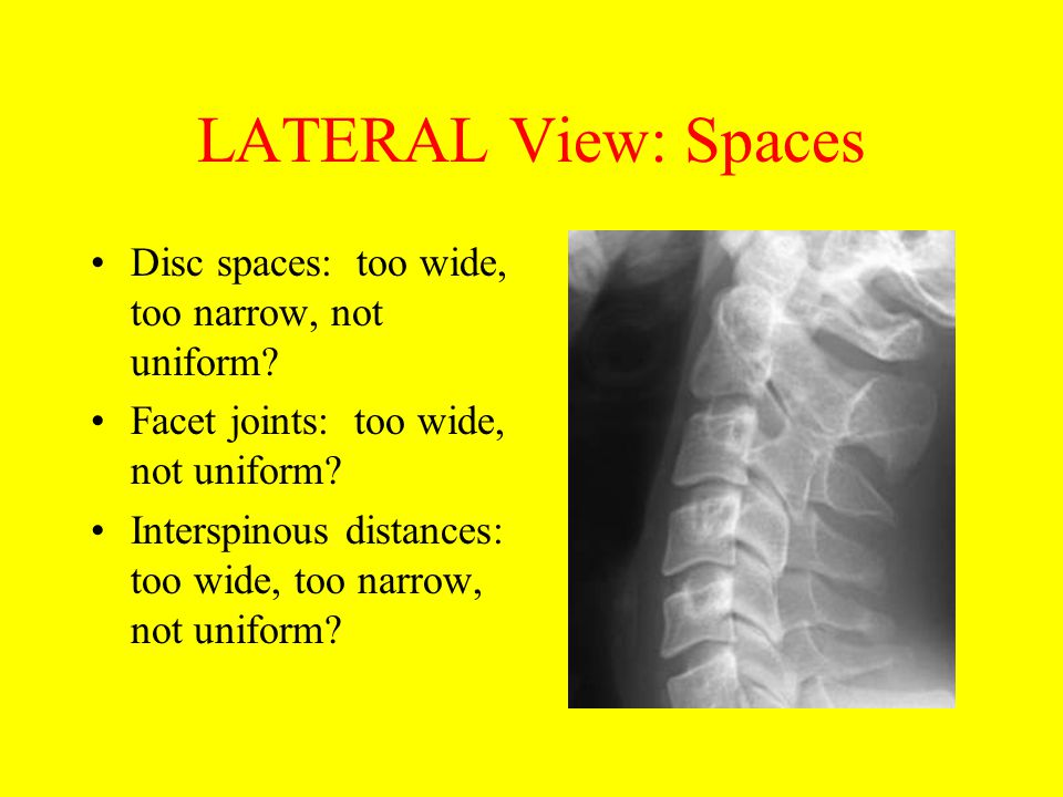 LATERAL View: Spaces Disc spaces: too wide, too narrow, not uniform