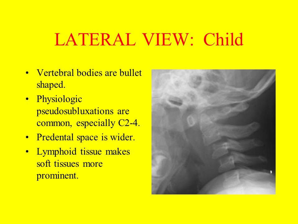 LATERAL VIEW: Child Vertebral bodies are bullet shaped.