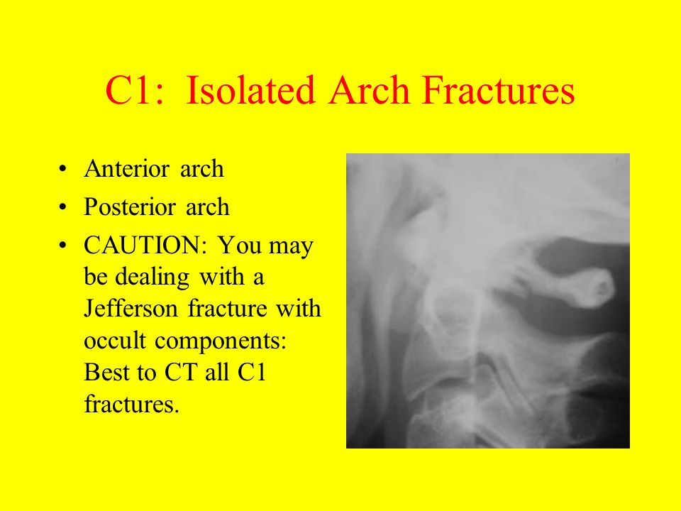 C1: Isolated Arch Fractures