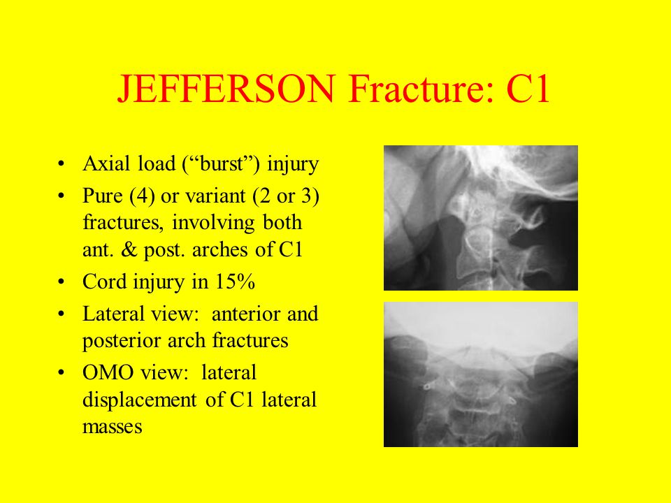 JEFFERSON Fracture: C1 Axial load ( burst ) injury