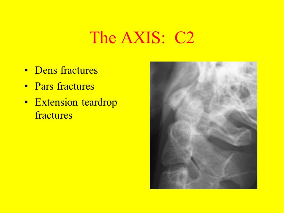 The AXIS: C2 Dens fractures Pars fractures