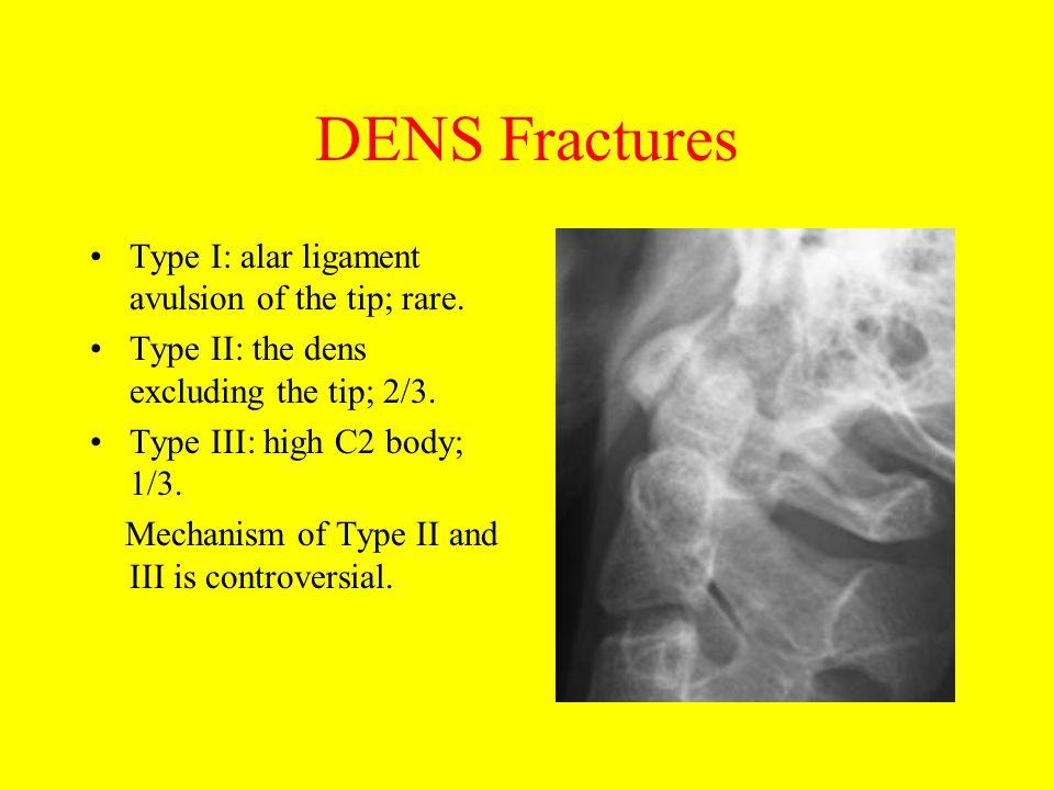 DENS Fractures Type I: alar ligament avulsion of the tip; rare.