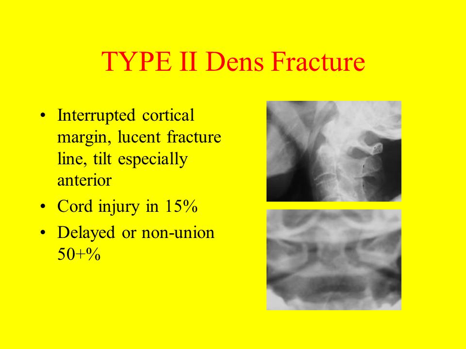 TYPE II Dens Fracture Interrupted cortical margin, lucent fracture line, tilt especially anterior. Cord injury in 15%