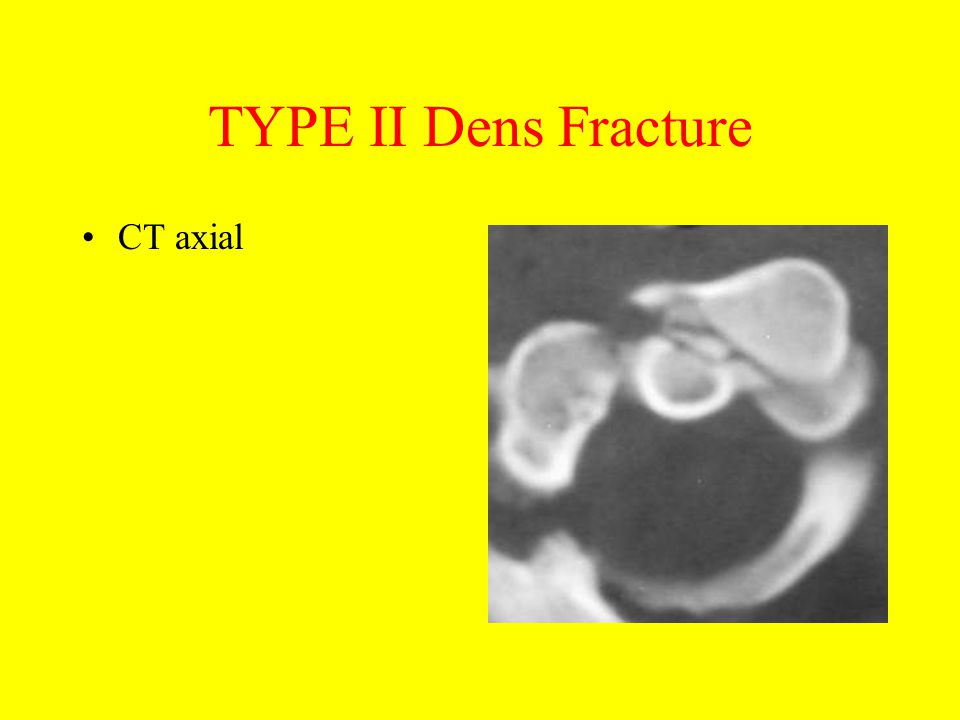 TYPE II Dens Fracture CT axial