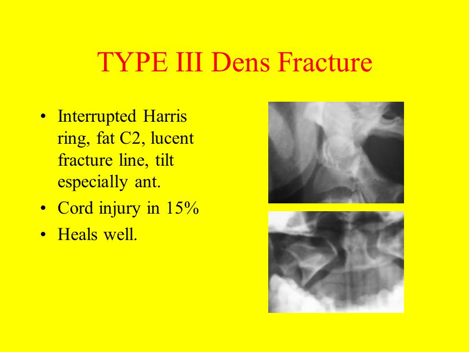 TYPE III Dens Fracture Interrupted Harris ring, fat C2, lucent fracture line, tilt especially ant. Cord injury in 15%