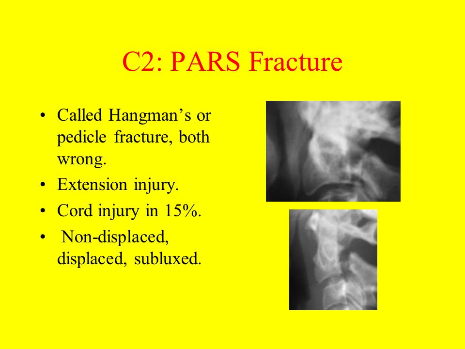 C2: PARS Fracture Called Hangman's or pedicle fracture, both wrong.
