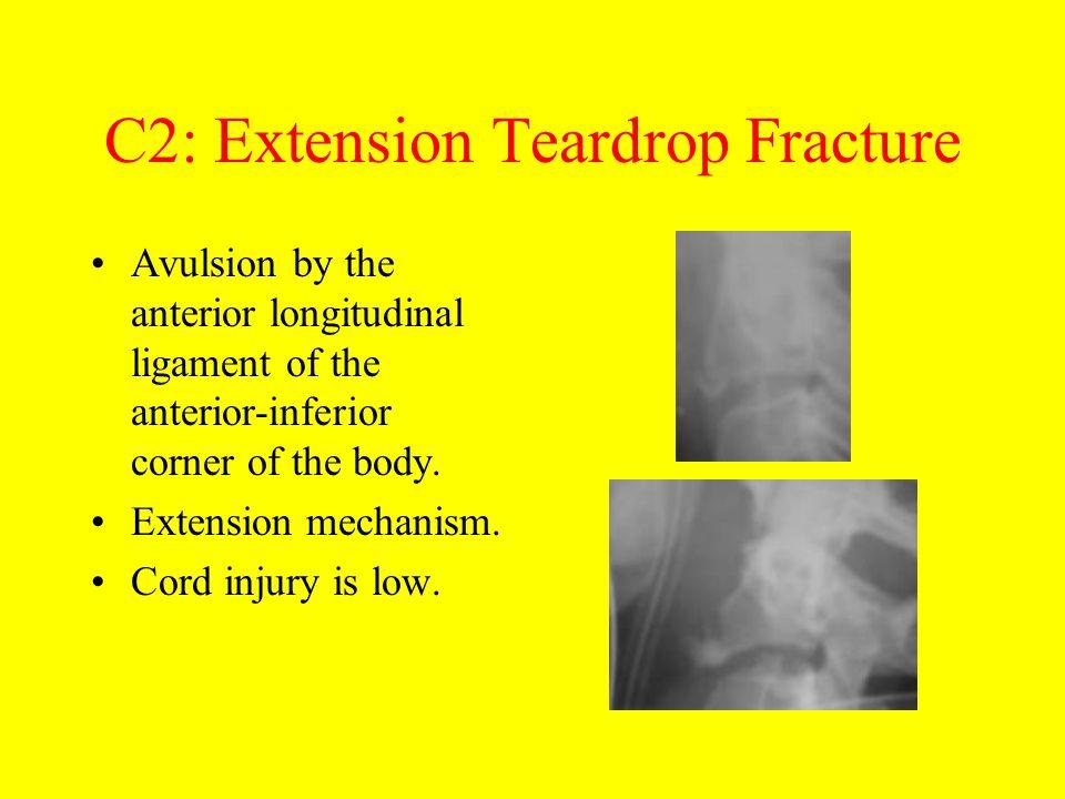 C2: Extension Teardrop Fracture