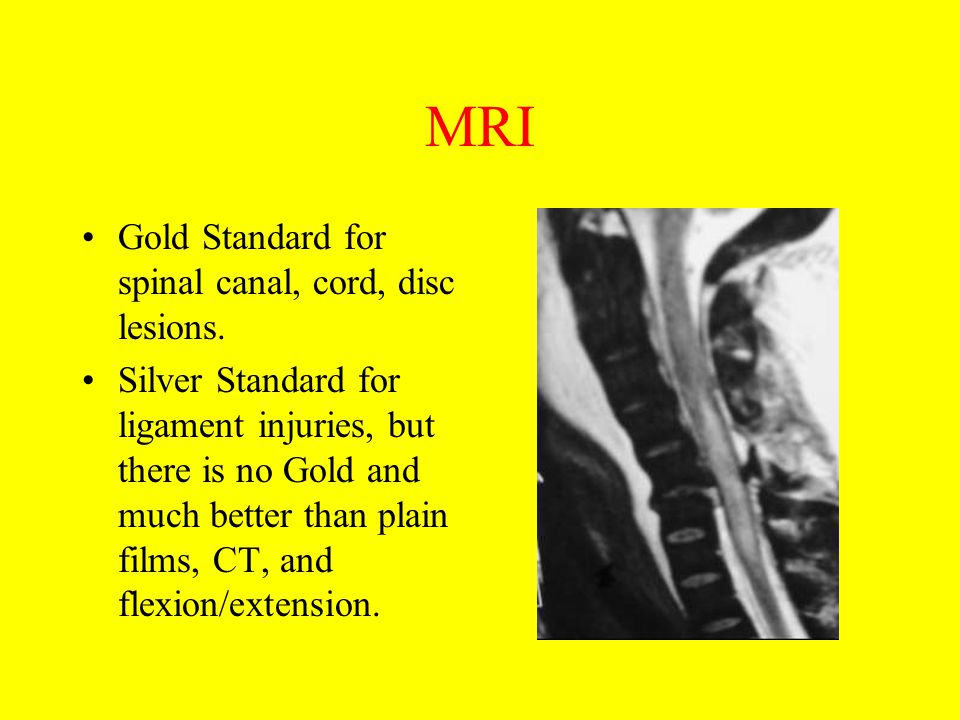 MRI Gold Standard for spinal canal, cord, disc lesions.