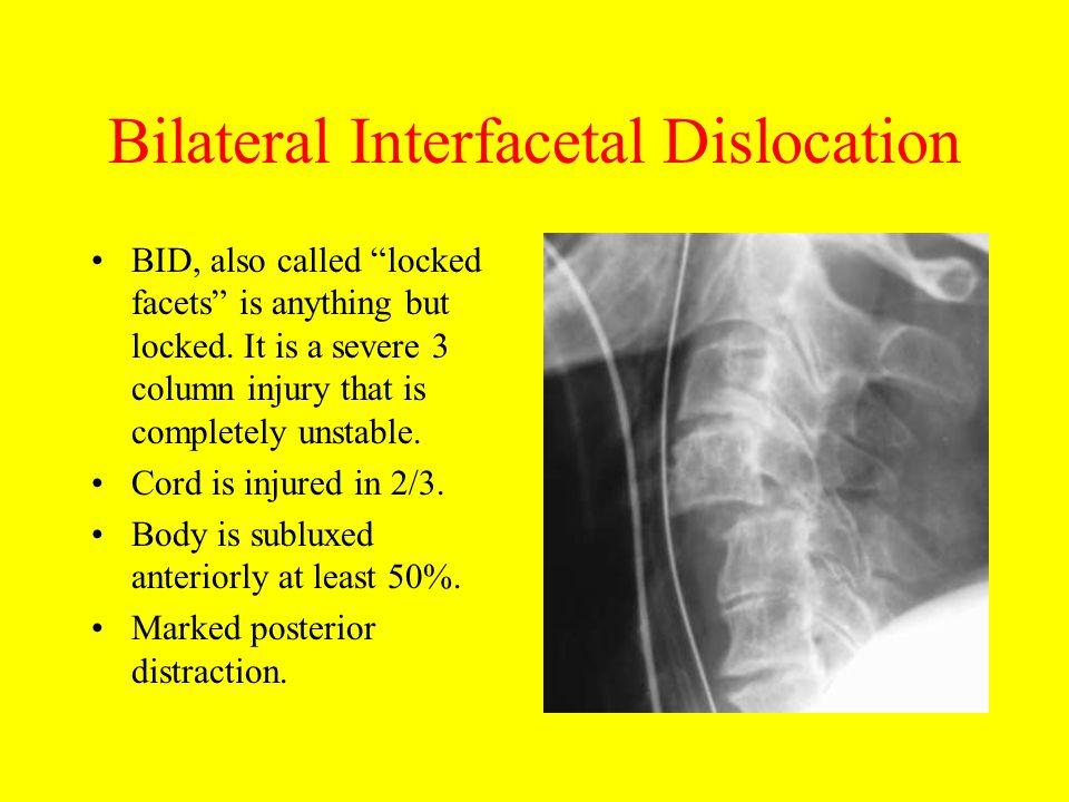 Bilateral Interfacetal Dislocation