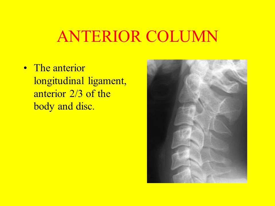 ANTERIOR COLUMN The anterior longitudinal ligament, anterior 2/3 of the body and disc.