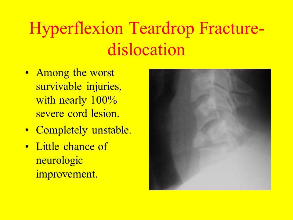 Hyperflexion Teardrop Fracture- dislocation