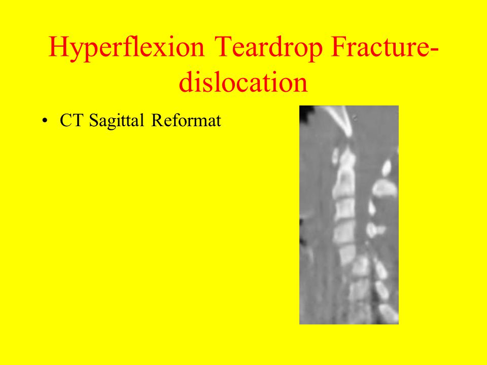 Hyperflexion Teardrop Fracture-dislocation