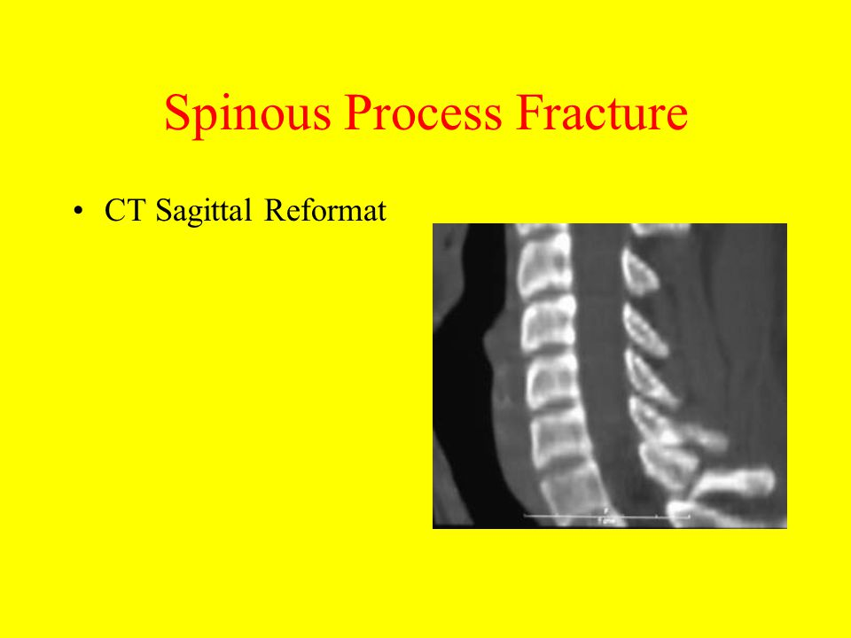 Spinous Process Fracture