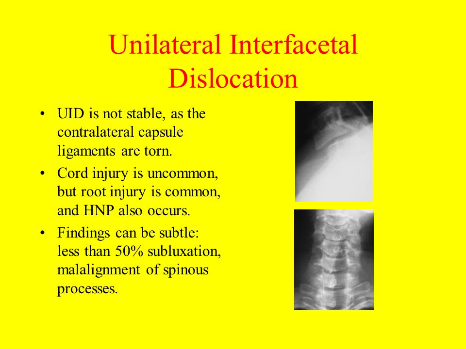 Unilateral Interfacetal Dislocation
