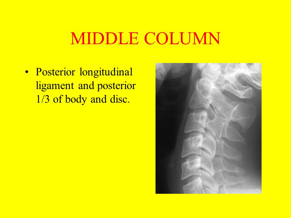 MIDDLE COLUMN Posterior longitudinal ligament and posterior 1/3 of body and disc.