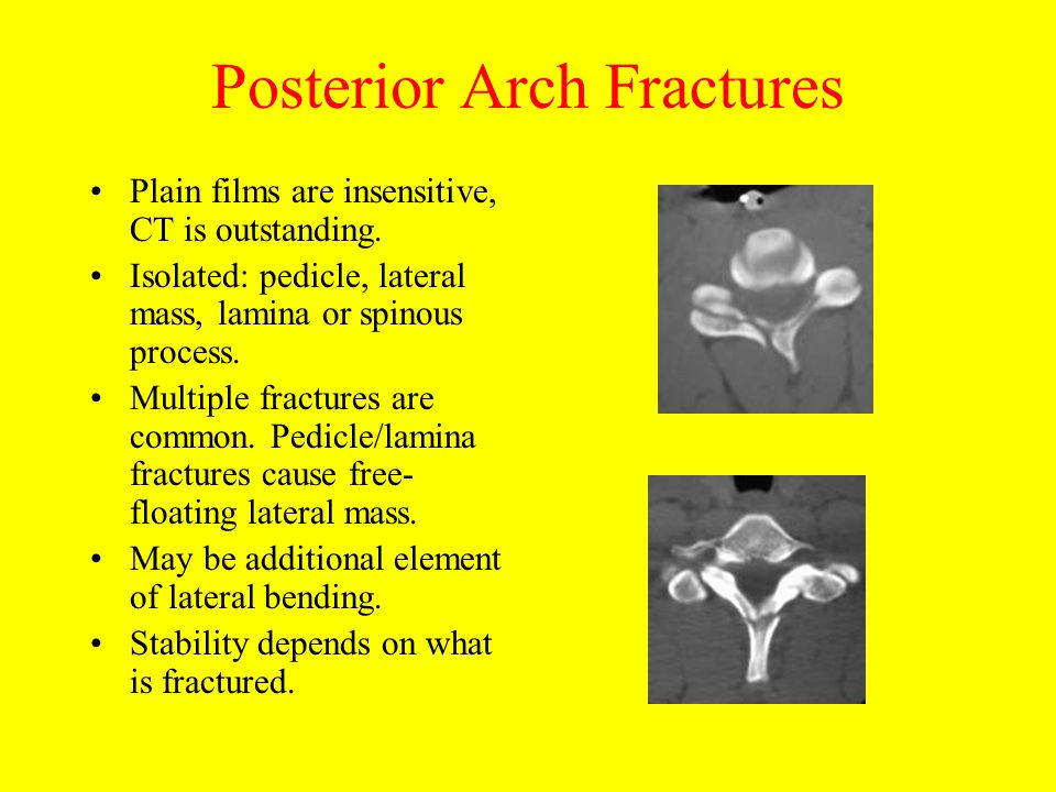 Posterior Arch Fractures