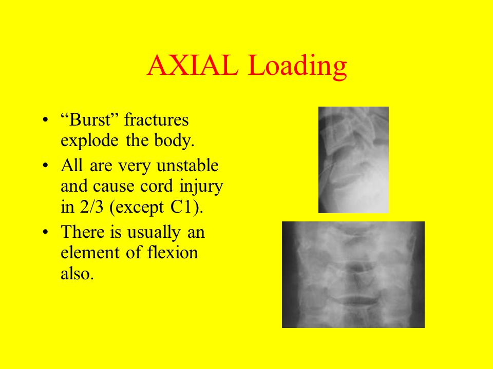 AXIAL Loading Burst fractures explode the body.