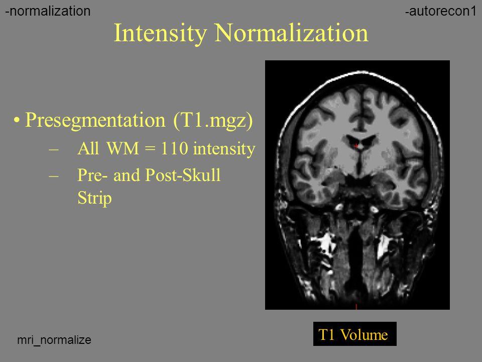 Intensity Normalization