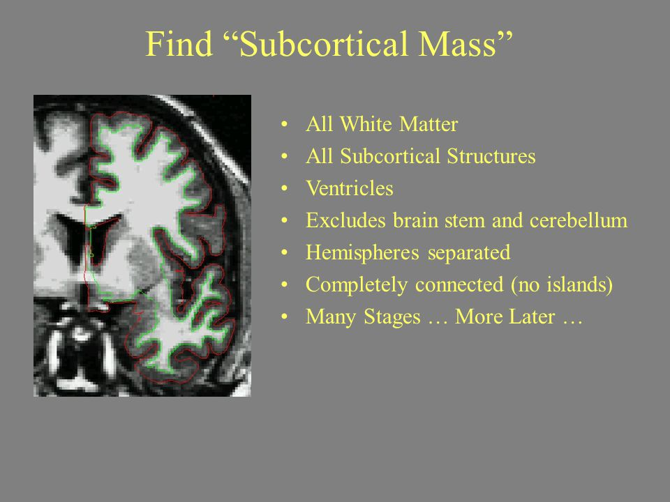 Find Subcortical Mass