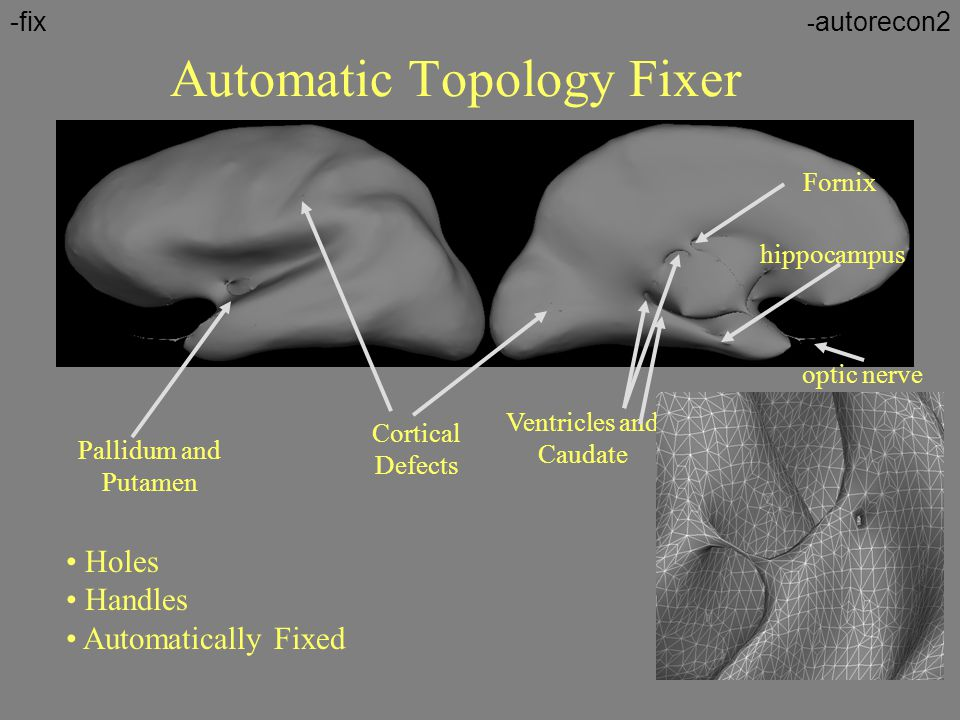Automatic Topology Fixer