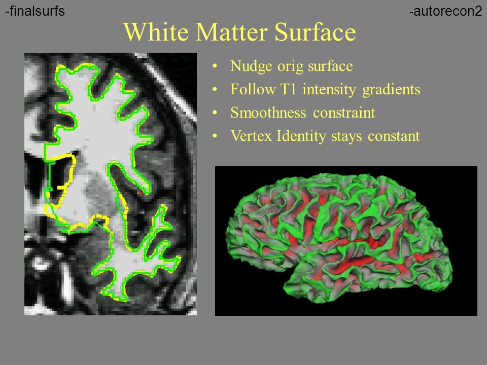 White Matter Surface Nudge orig surface Follow T1 intensity gradients