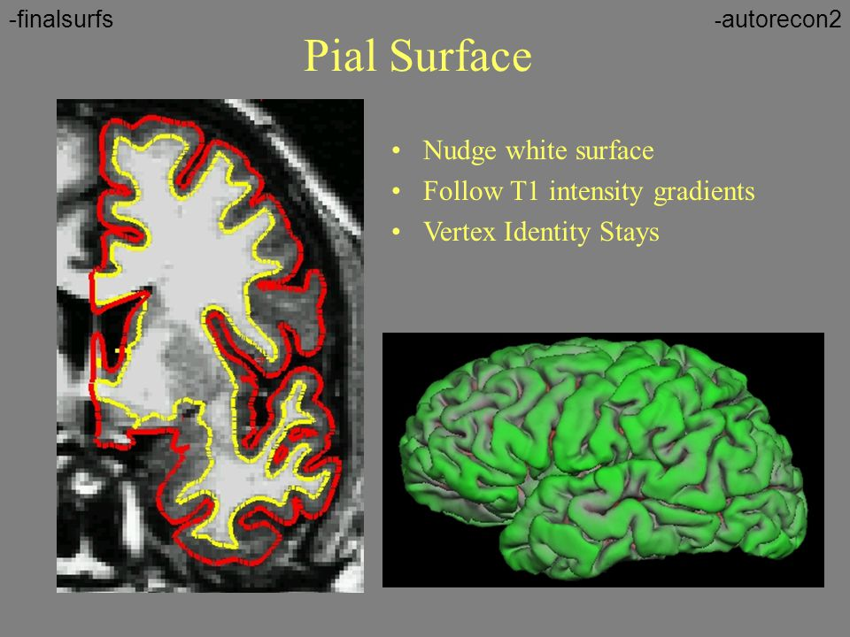 Pial Surface Nudge white surface Follow T1 intensity gradients