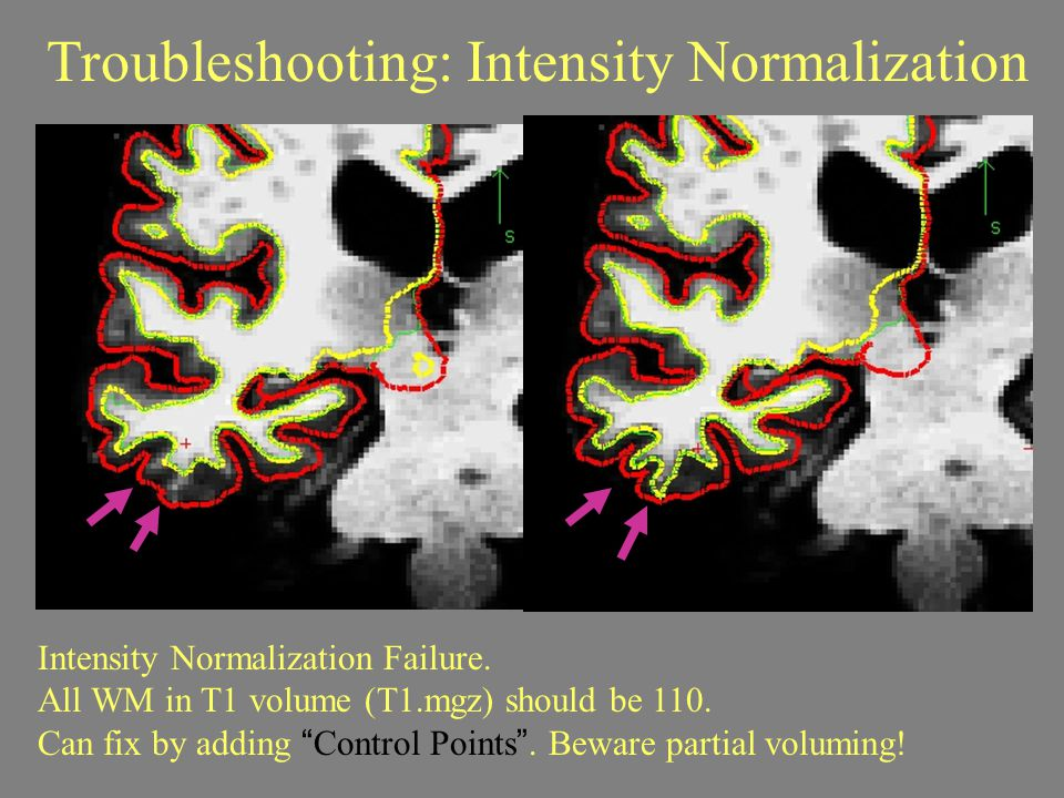 Troubleshooting: Intensity Normalization