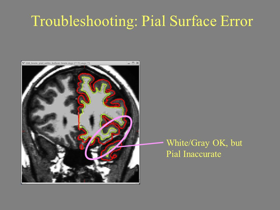 Troubleshooting: Pial Surface Error