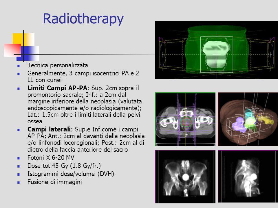 Radiotherapy Tecnica personalizzata