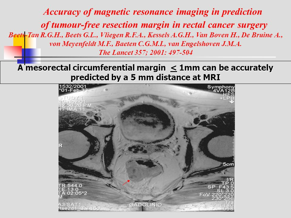 Accuracy of magnetic resonance imaging in prediction