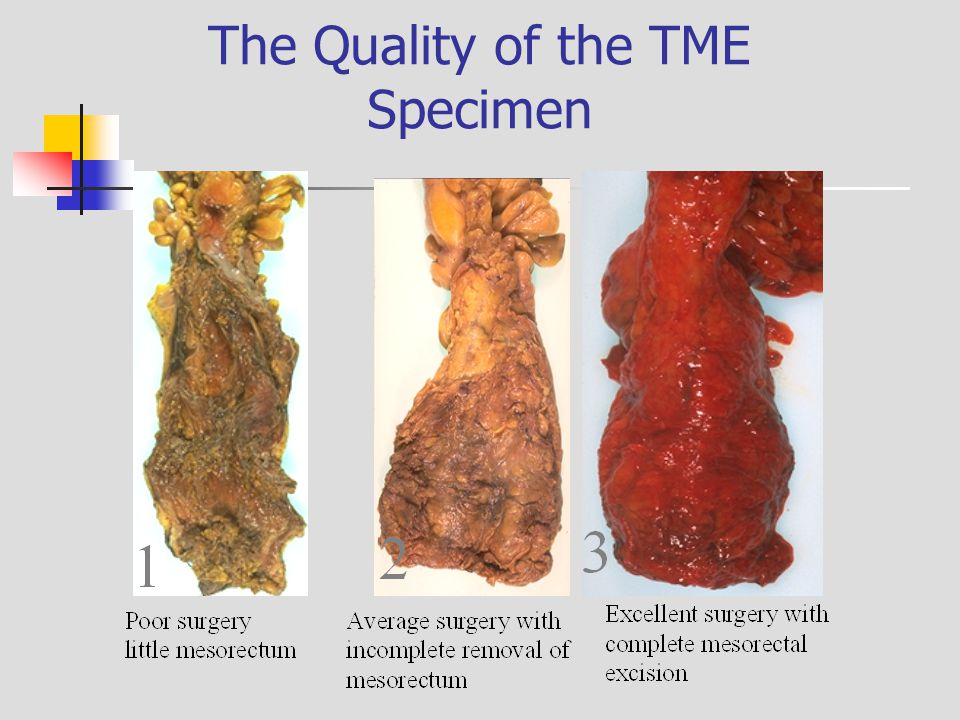 The Quality of the TME Specimen