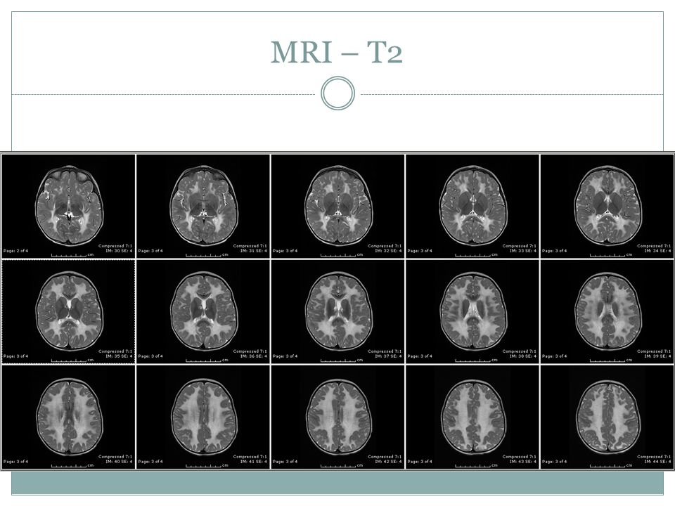 MRI – T2 Overall, findings would strongly suggest metachromatic leukodystrophy. Specifically, abnormal T2 bright signal is seen throughout the.