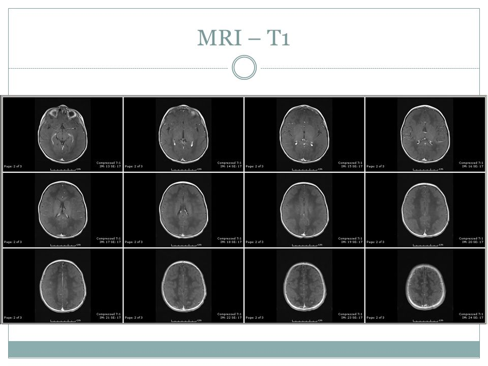 MRI – T1 Overall, findings would strongly suggest metachromatic leukodystrophy. Specifically, abnormal T2 bright signal is seen throughout the.