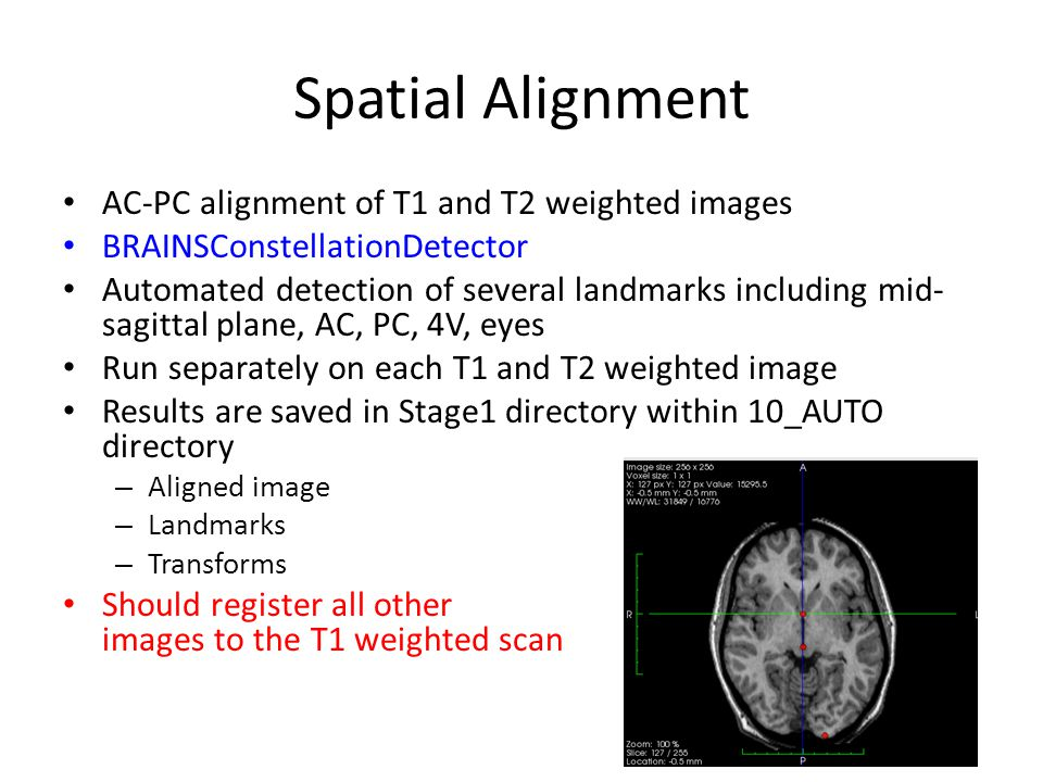 Spatial Alignment AC-PC alignment of T1 and T2 weighted images