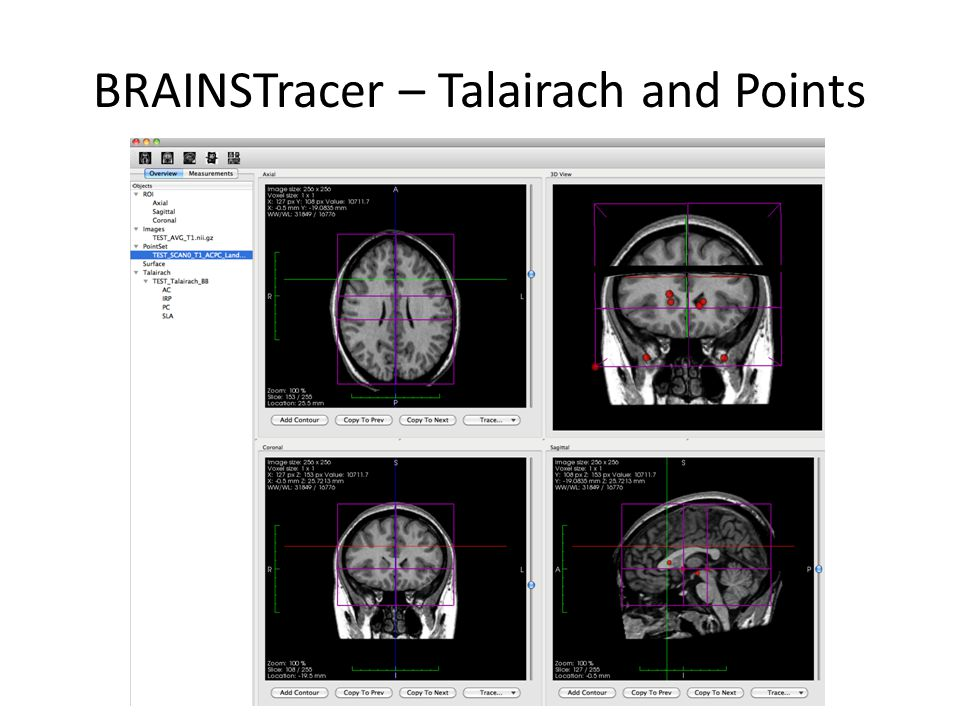 BRAINSTracer – Talairach and Points