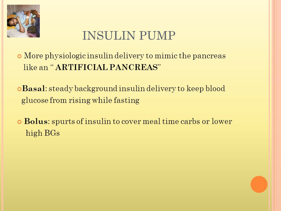 INSULIN PUMP More physiologic insulin delivery to mimic the pancreas