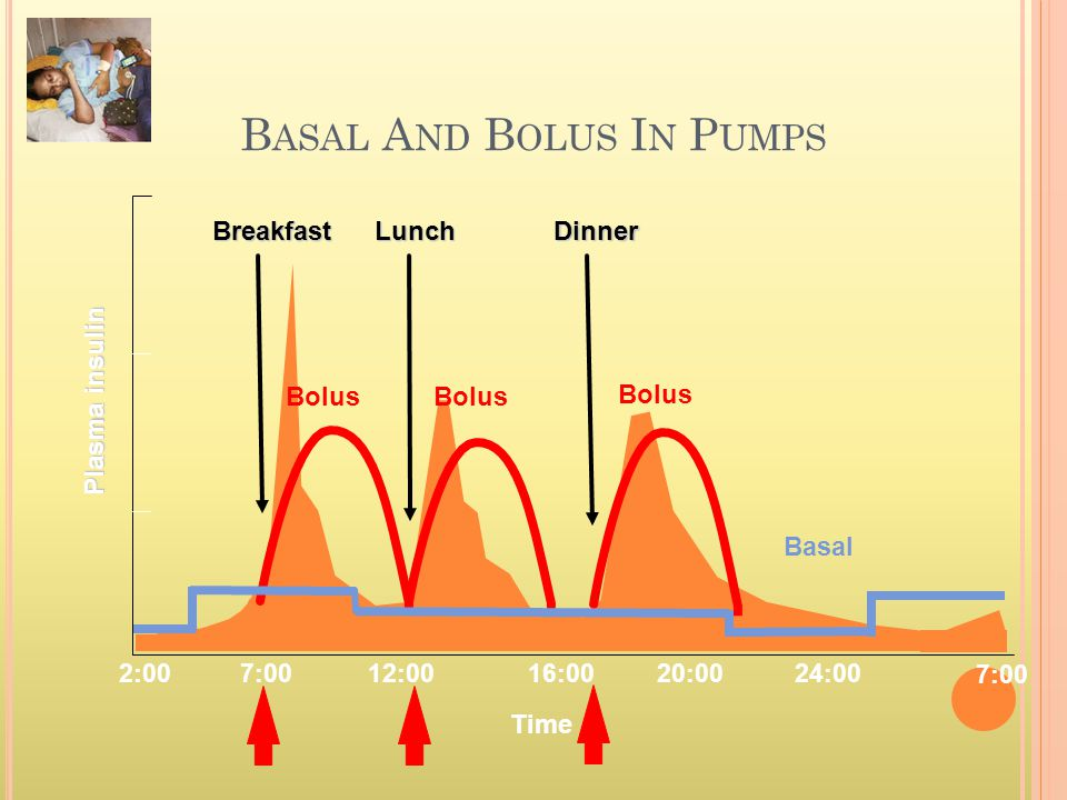 Basal And Bolus In Pumps